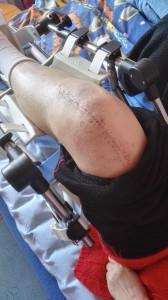 endopoteza stawu kolanowego - rehabilitacja poznań